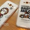 เคส Samsung Galaxy A8 :เบบี้ไมโล ขอบใส